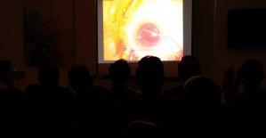 Göz doktorlarına canlı yayında katarakt ameliyatı